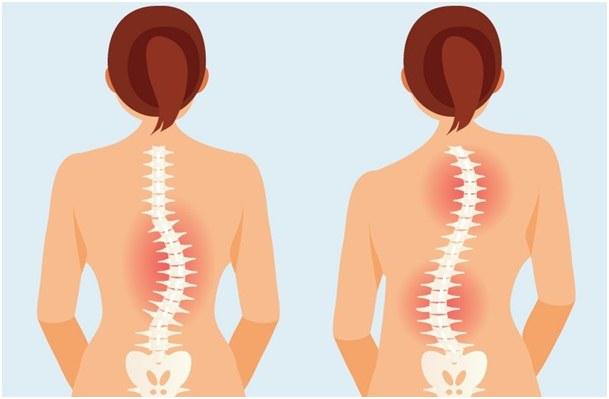 dijagnostika skolioza