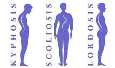 posturalni deformiteti